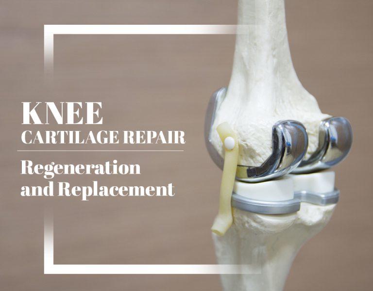 Knee Cartilage Injury