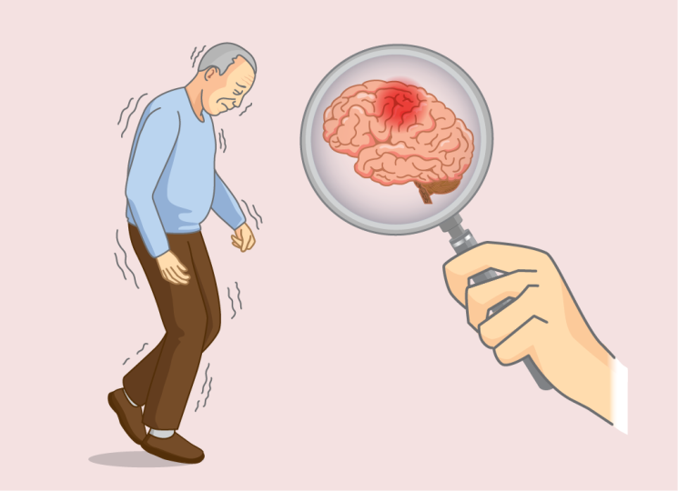 All You Wanted to Know About Alzheimer's Disease