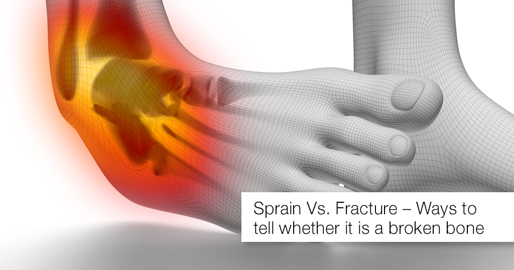 Sprain Vs. Fracture – Ways to tell whether it is a broken bone