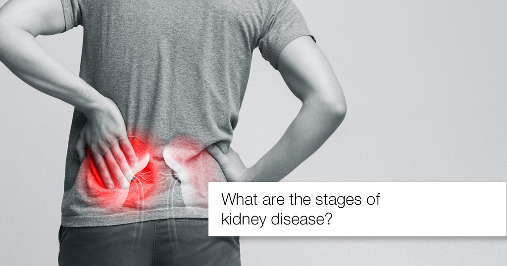 What are the stages of kidney disease?