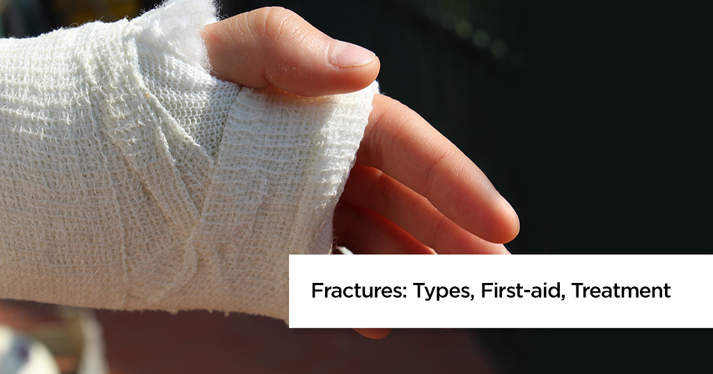 Types of Fractures and Bone Fracture Treatment