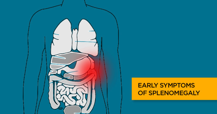 Splenomegaly - Causes, Symptoms, Complications & Treatment