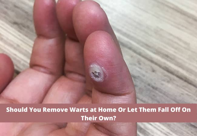 Should You Remove Warts at Home Or Let Them Fall Off On Their Own