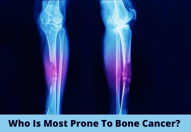 Who Is Most Prone To Bone Cancer