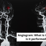 Angiogram: What is it? Why is it performed?