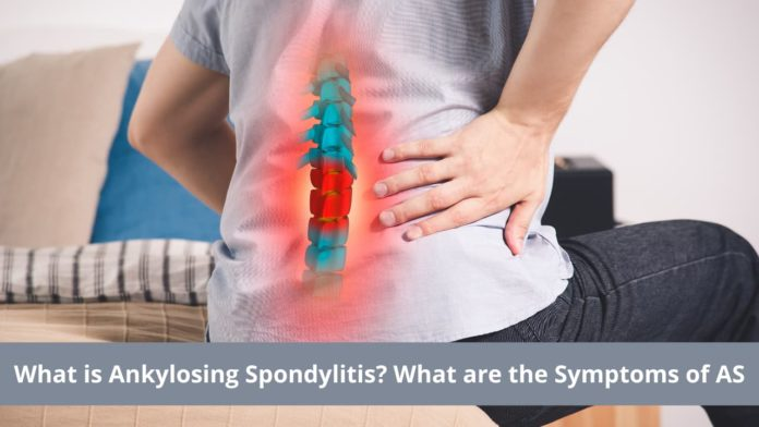 What is Ankylosing Spondylitis What are the Symptoms of AS