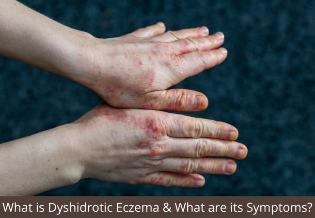 What is Dyshidrotic Eczema & What are its Symptoms