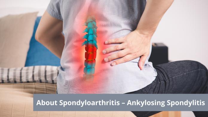 About Spondyloarthritis – Ankylosing Spondylitis