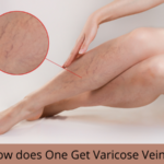How does One Get Varicose Veins?