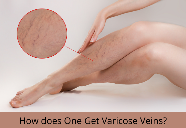 How does One Get Varicose Veins