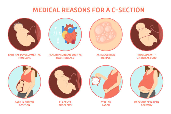 Indications of C SECTION