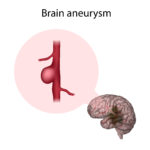 Are brain aneurysms dangerous? What problems do they cause?