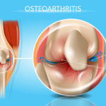 What is Osteoarthritis of the Knee? Stages, Symptoms, Causes, Diagnosis, and Treatment