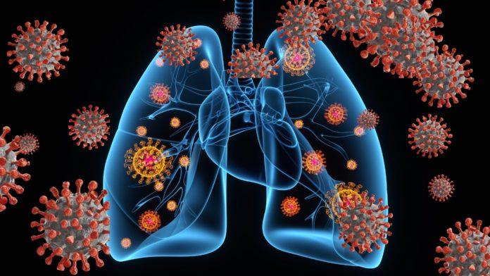 Silent Hypoxia in COVID-19 Patients