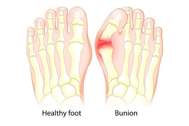 Symptoms of Bunions