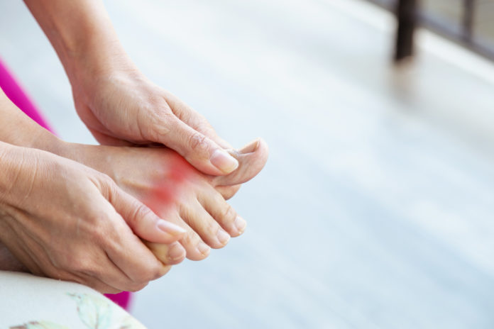 Gout Symptoms, causes