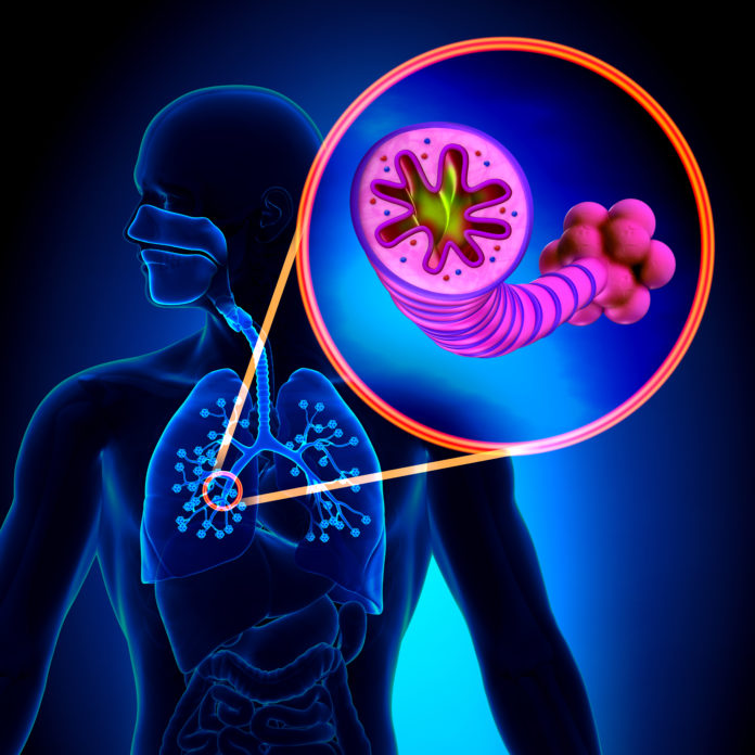 COPD or Chronic Obstructive Lung Disease