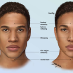 Feminizing Surgery – What You Should Know