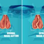 Nasal Septum Deviation – Symptoms, Causes & Treatment